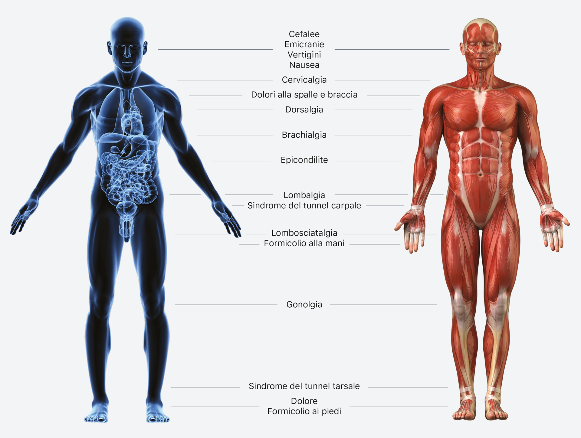 chiropratica infografica